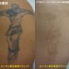 腕の黒一色タトゥーを薄くしました。