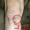 ランニング初心者が経験した怪我と一番効いた治療法についてまとめ~鵞足炎編~