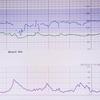 039: 31週目 初体験NST(non-stress test)、 CTG 胎児心拍数陣痛図 (cardiotocography) UK妊婦生活 予定日まであと62日