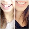 歯並び比較!②