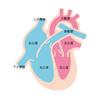 心房細動 Af と 脳梗塞