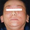アトピー性皮膚炎の改善写真(30代女性)