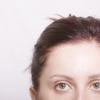 40代以降の女性に多い抜け毛や薄毛の症状とは? それぞれの症状に合った育毛剤の選び方