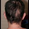症例:BMJ 51歳女性 虫食い状脱毛