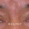難易度の高い眼瞼下垂の他院修正例 〜保険治療での失敗について思うこと〜