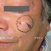 頬にできた大きな粉瘤(ふんりゅう)の手術治療