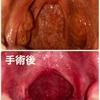 大人の扁桃腺摘出手術 その後の経過とメリット・デメリット