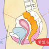 40代女性尿もれの原因は?治し方はあるの?