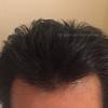 【5か月目で早くも大満足MAX!】だれやぁぁ 毛が生えるまで1年かかるって言ったヤツw ミノキシジルとプロペシア薬の経過 AGAハゲ・頭皮画像