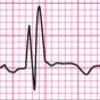 右脚ブロックと左脚ブロックの心電図