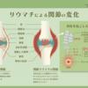 046【関節リウマチ】自己免疫疾患(その1)