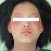アトピー性皮膚炎が改善した女子中学生の感想