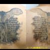 圧倒的症例数!ピコレーザー(エンライトン)でタトゥーを除去をしています。 1回治療後です。1色