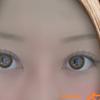 レーシック以外の視力矯正治療と比較【ドライアイと強度近視でも受けられる治療法】