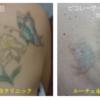 8回の治療経過の全写真。5色カラータトゥー。背中の花