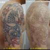 カラフルな肩のタトゥーにピコレーザーを当てました