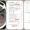 【症例報告】頭部CTは前頭側頭型認知症的で、長谷川式スケールはアルツハイマー型認知症的。診断は・・・。