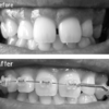 [矯正日記4-2]効果でた!歯列矯正開始後2ヵ月で変わった上の歯並び。