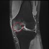 【膝の痛み】お医者様は良く選びましょう!膝の場合は膝に詳しい整形外科がお勧め!