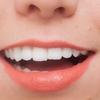 歯列矯正 銀座しらゆり歯科へ行ってきた