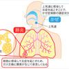 長引く乾いた咳! 黄色や緑の淡が出ているなら肺炎の疑いありですよ‼