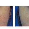みんなにおすすめ クマ治療。小切開脱脂術+コンデンスリッチナノファット脂肪注入(CRFnano)