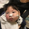 重症新生児仮死で生まれた2歳になる息子に胃ろうを造る