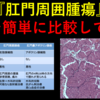 『肛門周囲腫瘍』3つの腫瘍を簡単にご紹介!!