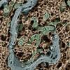 じじぃの「電子顕微鏡の達人・細胞が魅せる造形美・神業に近い!サイエンスZERO」