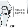 肘の痛みの原因となる「変形性肘関節症」について整形外科医が解説してみました