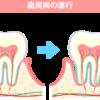 歯周病とは、どういう病気か? 歯周病といえば、やっぱりこの絵。