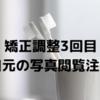 【歯列矯正】調整3回目!お気に入りの歯ブラシ紹介