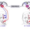 末梢性顔面神経麻痺と中枢性顔面神経麻痺の鑑別