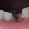 5歳+10日で人生初めての歯が抜けました☆