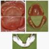 義歯の臨床問題解法のツボ②