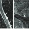 傍腫瘍性神経症候群の画像所見(AJNR review) その2|神経内科の論文学習