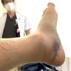 足首骨折・入院記録②4日目~8日目 手術までの日々