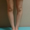 福辻式O脚矯正プログラム実践記録3週目~O脚改善への道~