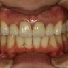 オールセラミックの歯茎が下がり始めたら早期治療がおすすめです.