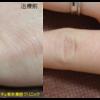 圧倒的症例数!ピコレーザー(エンライトン)でタトゥーを除去をしました。 3回治療後です。