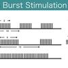 セラピストが知るべき経頭蓋磁気刺激の知識!:シーターバースト刺激
