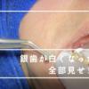 【ぼくの歯科レポート#4】春日原駅前歯科医院で銀歯を白くしました【PR】