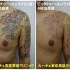 胸から腕にかけて広がる龍のカラフルタトゥーを消しました。経過写真です。