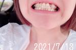 歯列矯正の話12 変化を記録〜MFTに苦戦中。