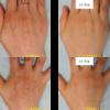コンデンスリッチ脂肪注入で手の甲がふっくらしました。3か月後の経過です。若々しい手になりました。