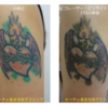 カラーカラフルタトゥー。腕。1回治療後の変化