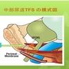TVT手術の欠点を克服した尿失禁手術がTFSです。