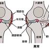 膝の痛みの原因となる「変形性膝関節症」について整形外科医が解説してみました