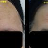 眉間と額のシワ改善にヒアルロン酸&ボトックス注射を行いました。美額になりました。