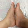 足の浮腫の写真 38週5日目